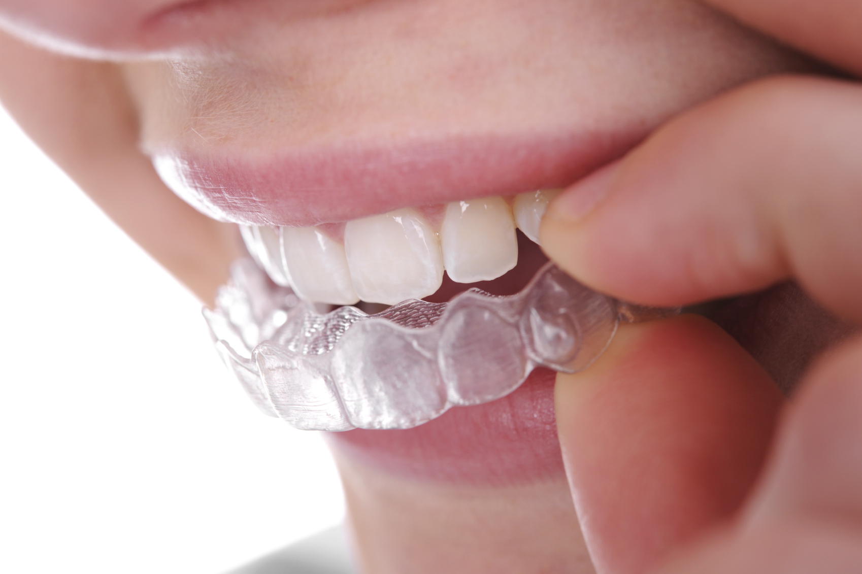 invisible braces - clear invisalign sunnyside dental