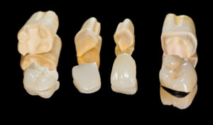individual crowns for various teeth