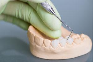 Dental bridge on plaster mold of teeth